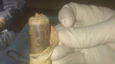 بالصور.. استخراج لفافة بها 1000 جنيه من معدة  مصري