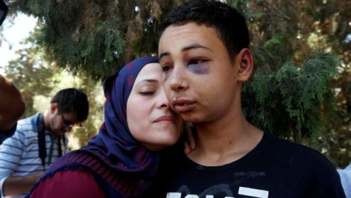 Tariq Khdeir is greeted by his mother after being released from jail in Jerusalem July 6, 2014. Read more at Reutershttp://www.reuters.com/article/2015/11/19/us-israel-palestinians-usa-teen-idUSKCN0T831020151119#L3Jru5GpqYvV4h2g.99