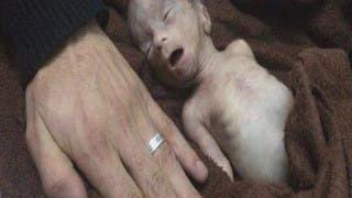 #حصار _مضايا.. 7 أشهر من الموت جوعا