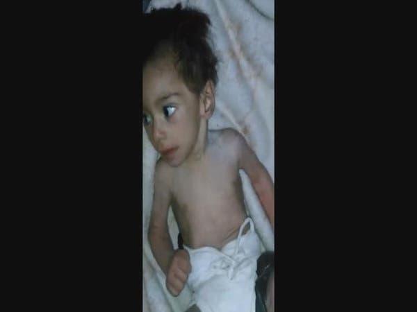 بالفيديو.. طفل من مضايا يصارع الجوع المميت