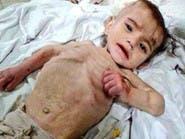#حصار_مضايا.. واشنطن تشكك بنوايا الأسد إدخال مساعدات