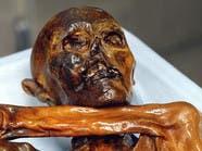عدوى معوية قديمة تكشف أسرارها مومياء عمرها 5300 عام