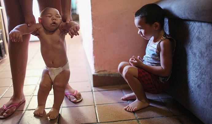 الطفل المعتل بالميكروسيفاليا مخه أصغر من المعتاد وكذلك جمجمته المضغوطة