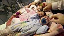 Youngest ever conjoined twins separated in Switzerland