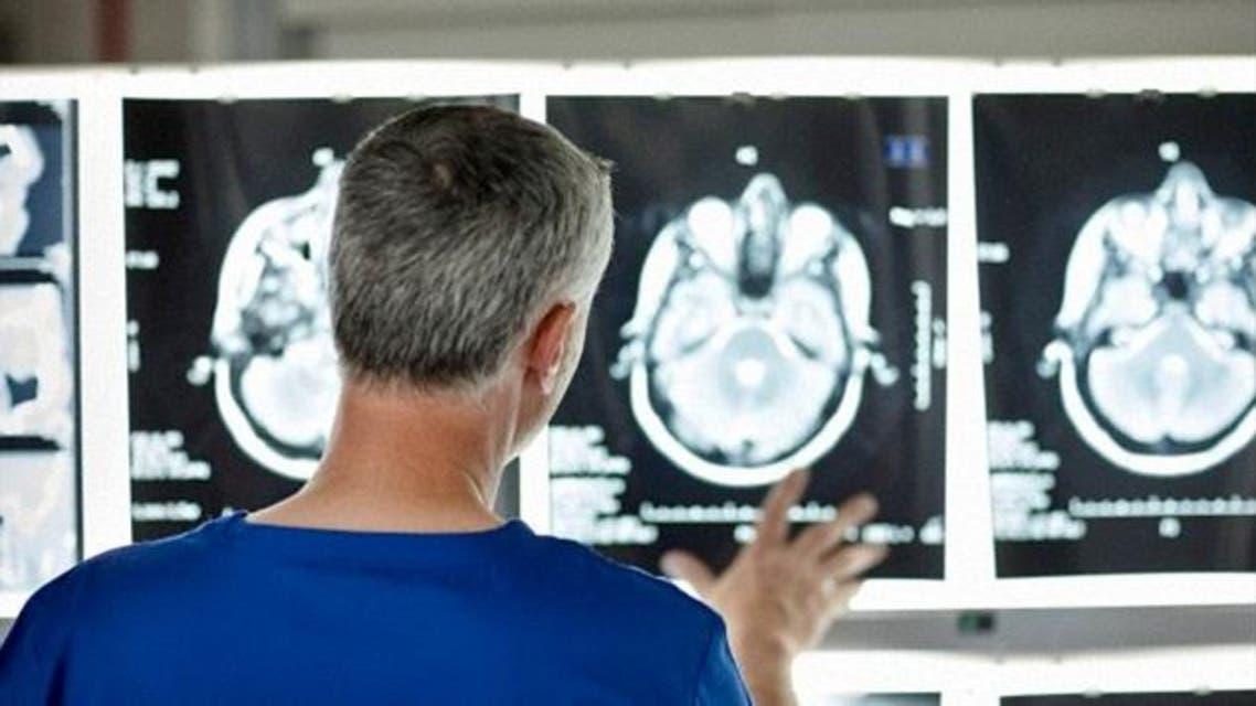 مخ دماغ أشعة
