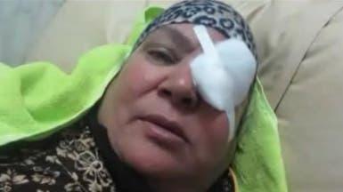 مصر.. علاج 5 مواطنين بالخارج أصيبوا بالعمى بسبب خطأ طبي