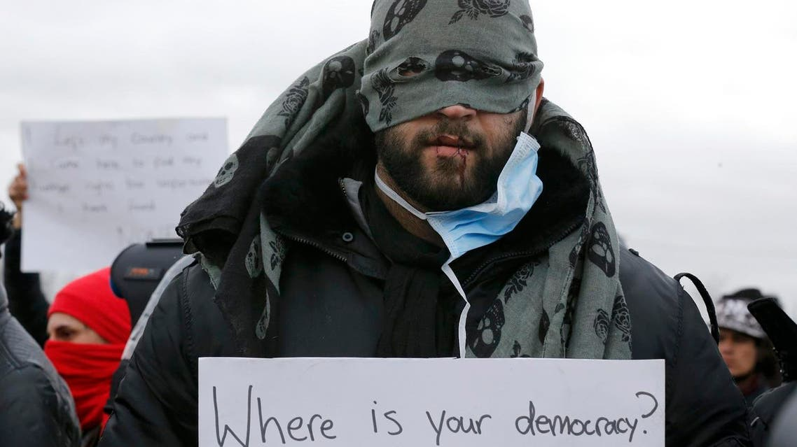 "An Iranian migrant, with his lips sewn, holds a message, ""Where is your democracy"" in protest of the partial dismantlement of the shanty town called the ""Jungle"" in Calais, France (Reuters))"