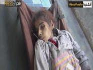 اتهام دولي للأسد بمنعه الغذاء والدواء عن بعض المناطق