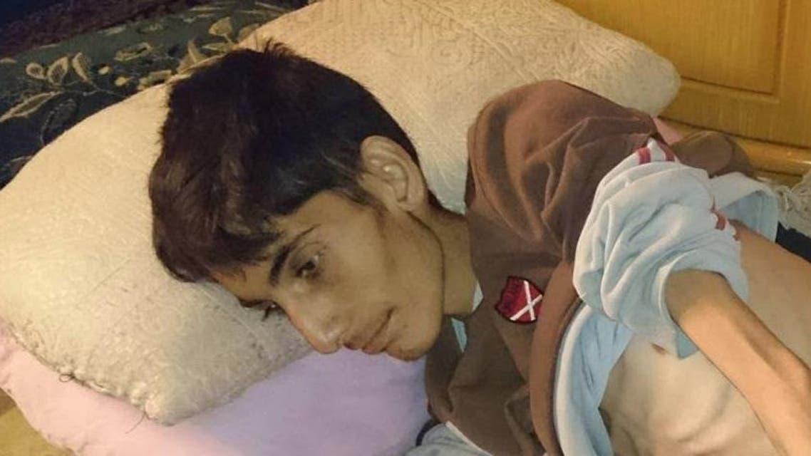 محمد شعبان مات جوعاً في مضايا