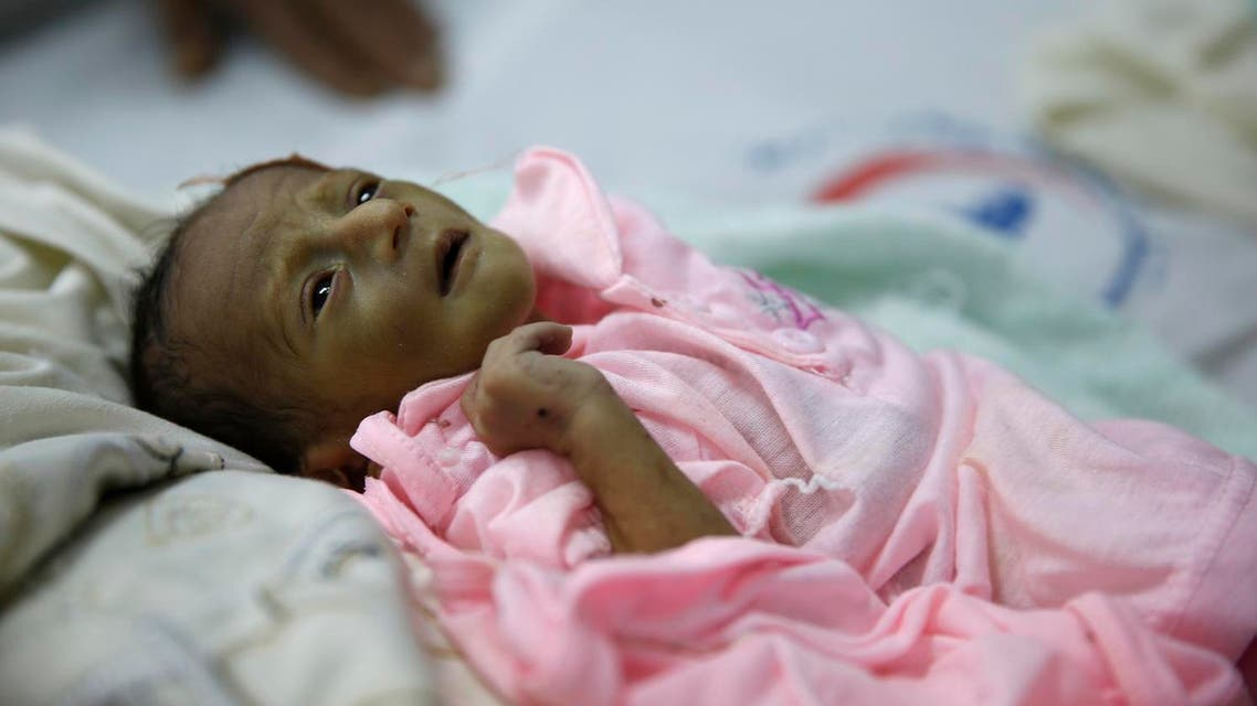 In this Jan. 24, 2016 photo, a malnourished child lies in a bed at a therapeutic feeding center in a hospital in Sanaa, Yemen. Some 3 million children here under five years require services to treat or prevent malnutrition, according to a UNICEF report on Jan. 13. (AP)