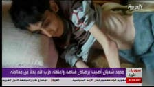 The tragic fate of a 18-year-old from the Syrian town of Madaya