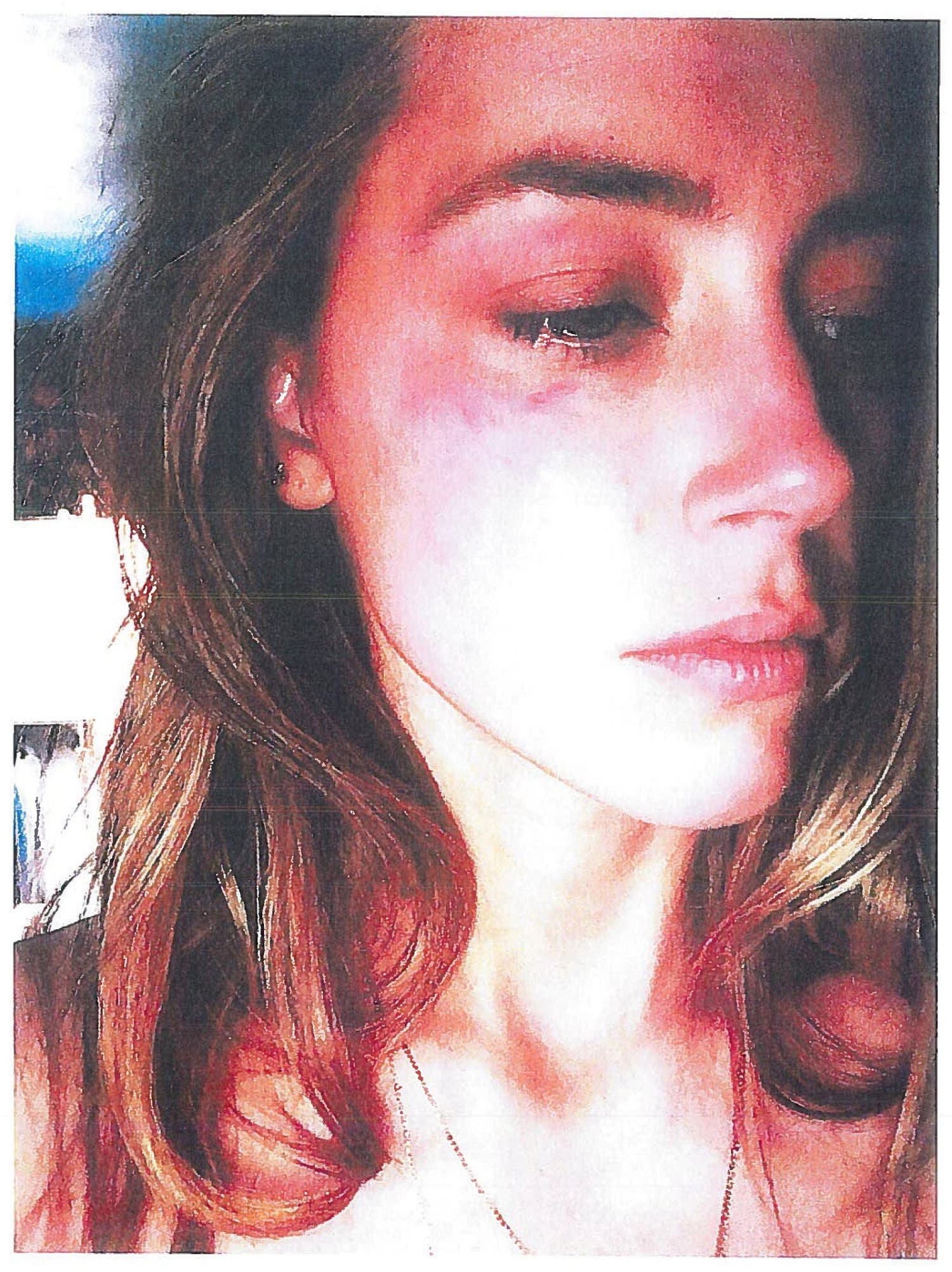 Actress Amber Heard is pictured in Los Angeles, California, U.S. with what appears to be bruising on her right cheek in an undated handout photograph included in a court filing for a restraining order against husband Johnny Depp. Superior Court of Los Angeles/Handout via Reuters