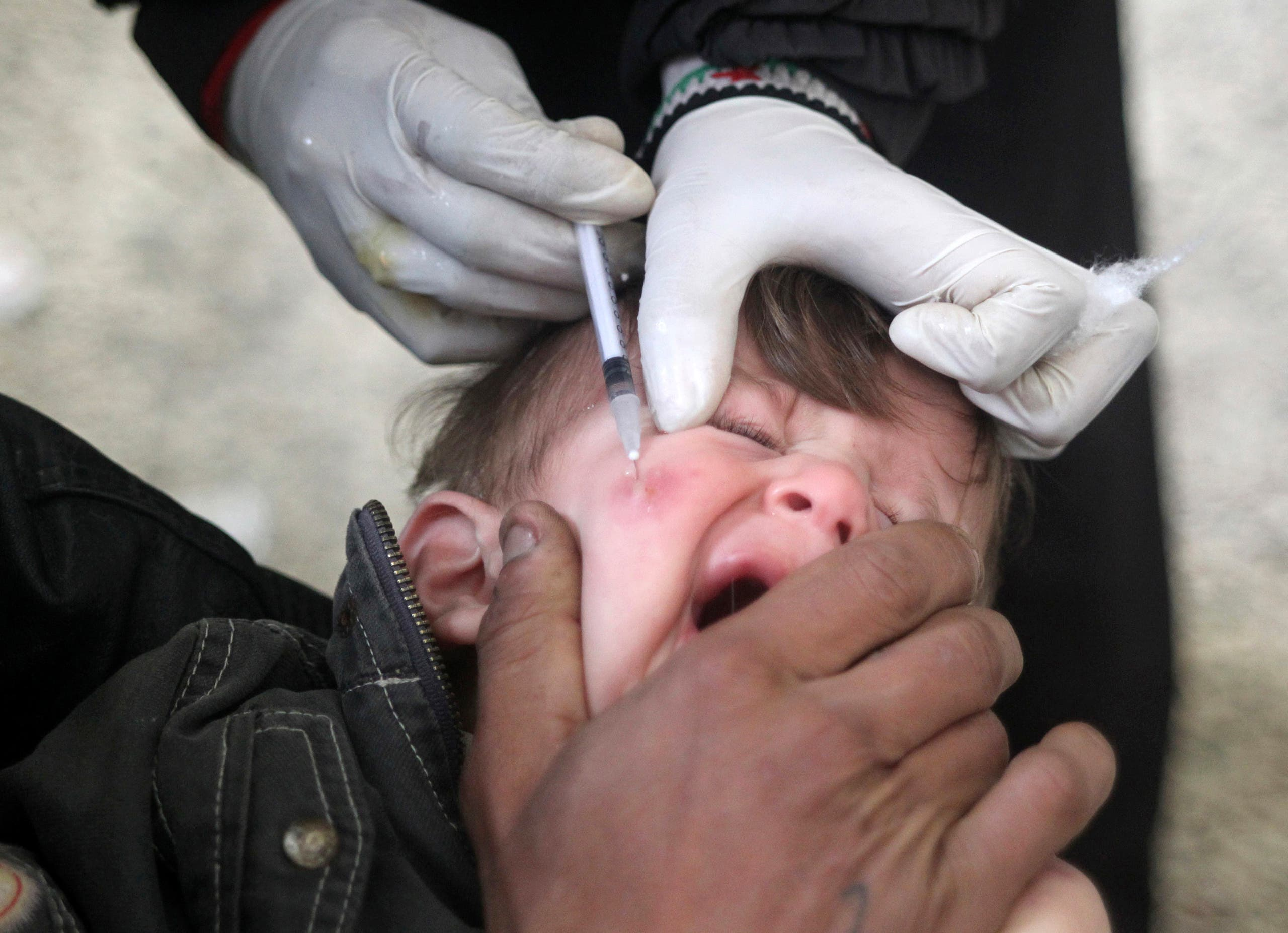A doctor treats a child showing symptoms of leishmaniasis at a hospital in Aleppo, February 11, 2013. (Reuters)