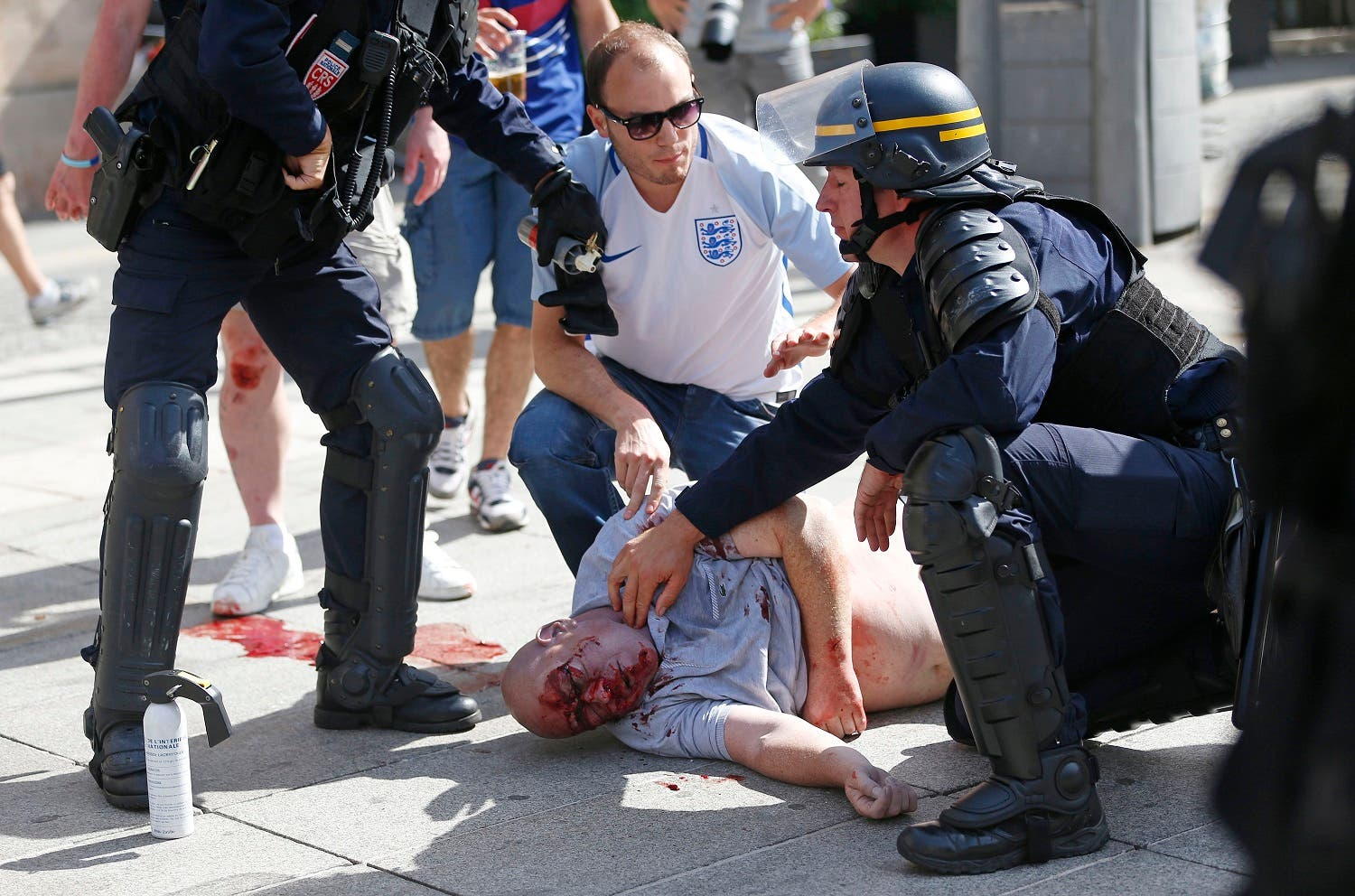 An man injured in clashes is assisted by police officers in downtown Marseille, France, Saturday, June 11, 2016. Riot police have thrown tear gas canisters at soccer fans Saturday in Marseille's Old Port in a third straight day of violence in the city. (AP)