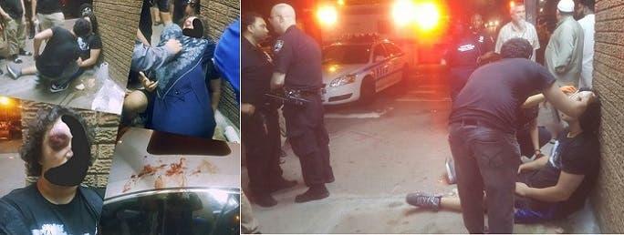 وعثروا على المراهقين ينزفان دما في بروكلين بنيويورك