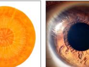 بالصور.. أسرار 12 فاكهة تشبه أجهزة جسم الإنسان