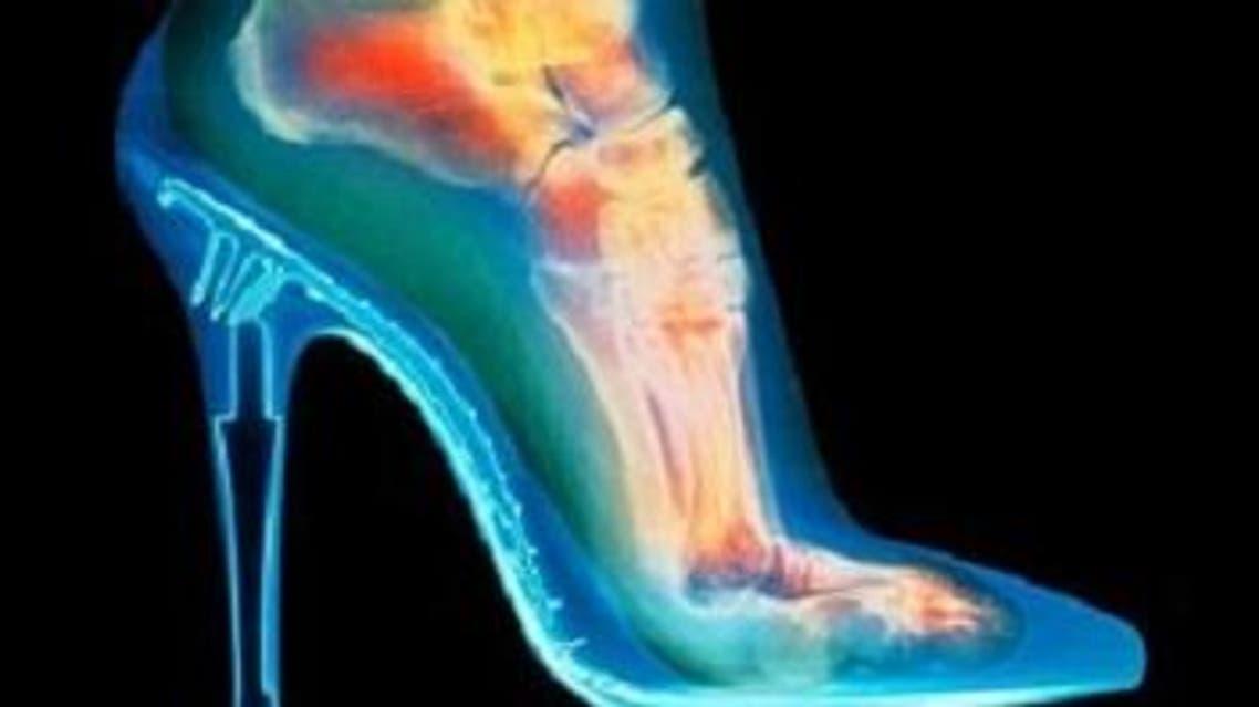 العظام - القدم