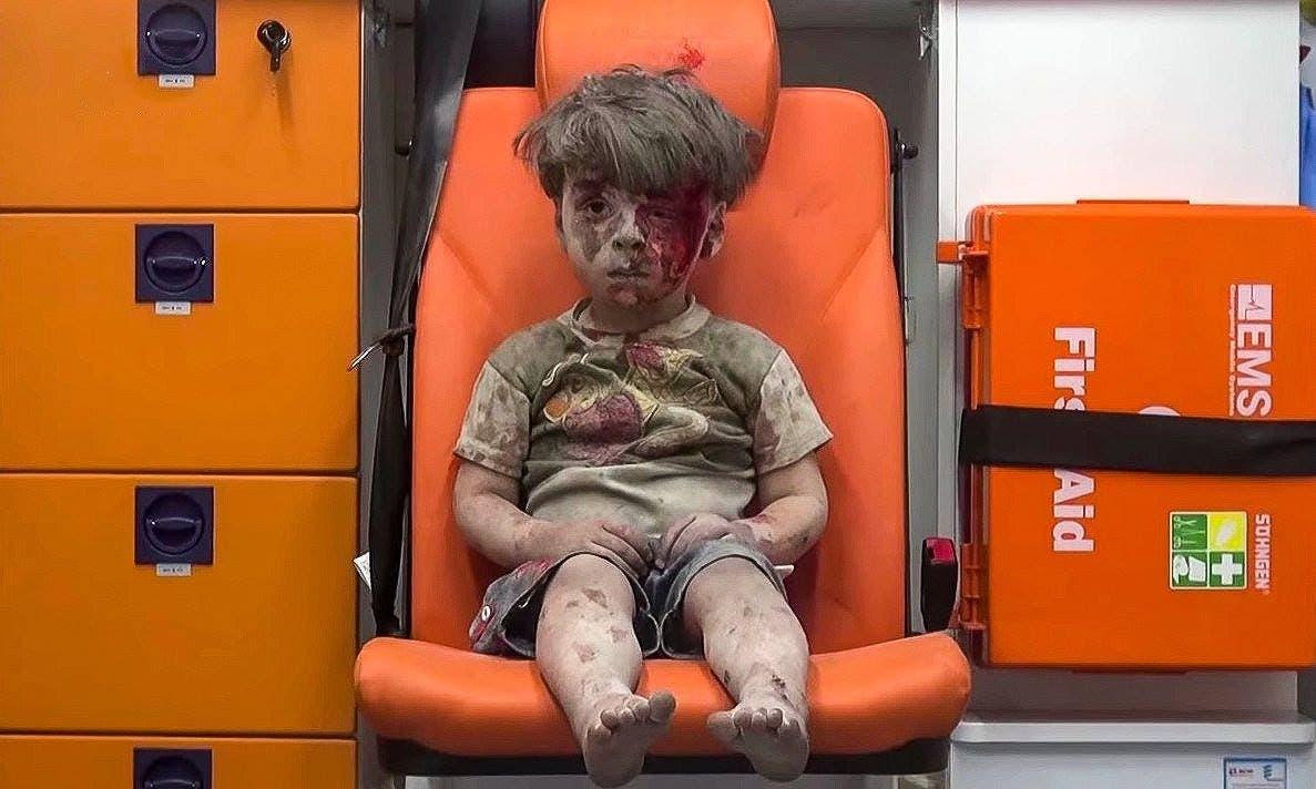 الطفل الحلبي عمران والذي هزّت صورته العالم