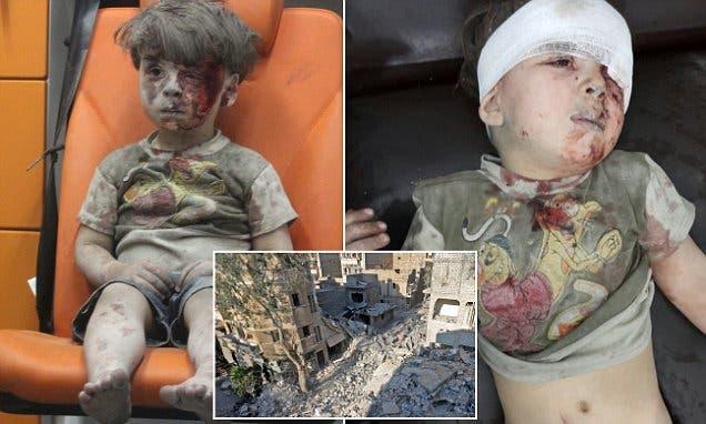 الطفل عمران قبل وبعد إسعافه إضافة لمنزله المهدم
