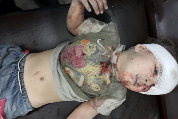 الطفل عمران بعد إسعافه إثر غارات النظام وروسيا
