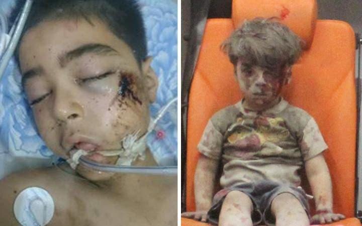 الطفل السوري عمران وشقيقه علي