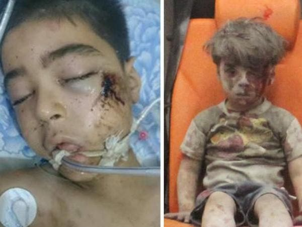 """فاجعة جديدة: وفاة شقيق الطفل """"عمران"""" بالقصف الروسي"""