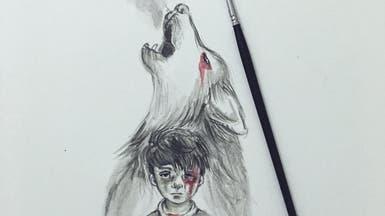 صورة الطفل عمران.. بكاء بلا دموع