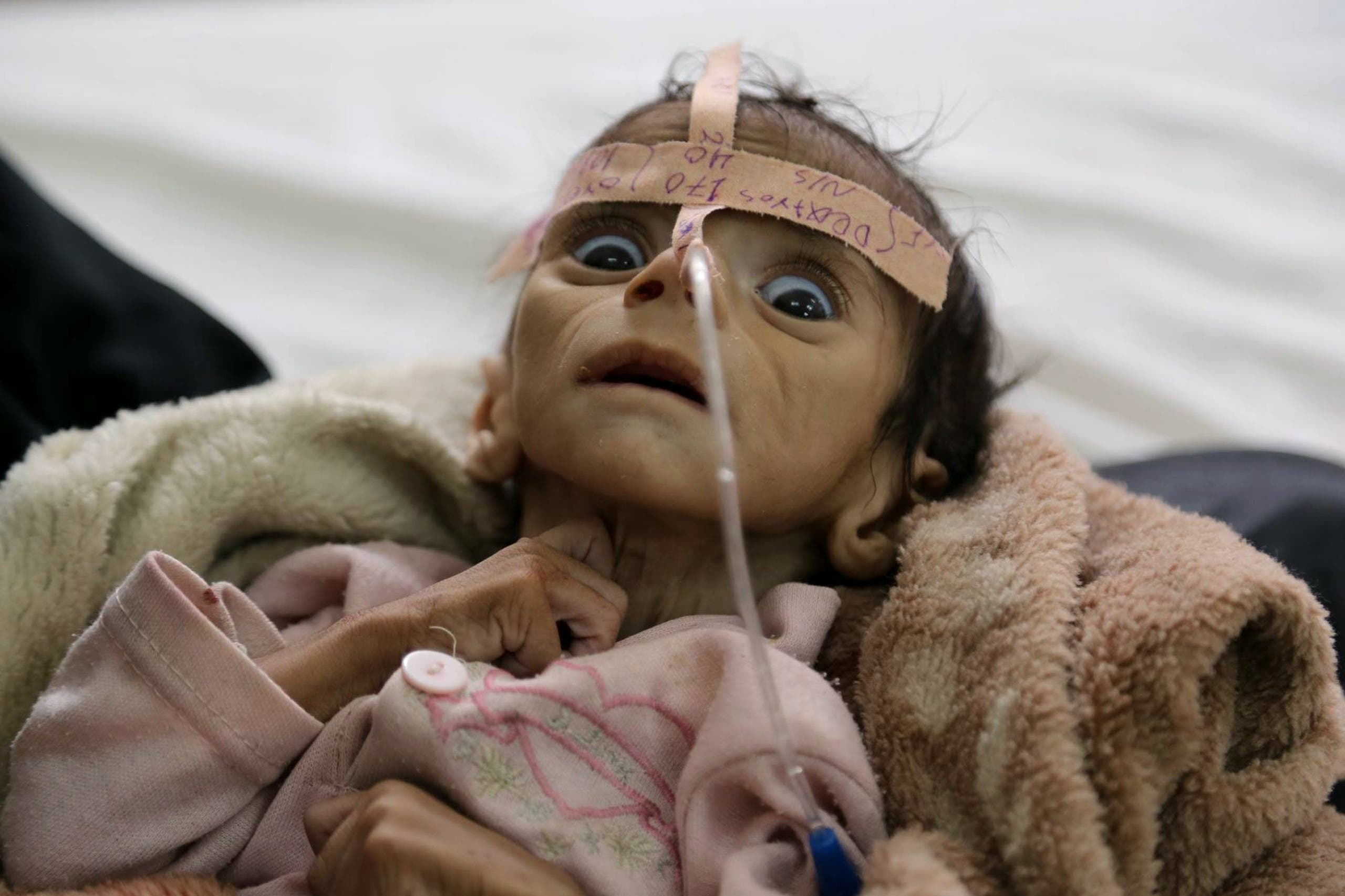 In this Tuesday, March 22, 2016 photo, infant Udai Faisal, who is suffering from acute malnutrition, is hospitalized at Al-Sabeen Hospital in Sanaa, Yemen. ap
