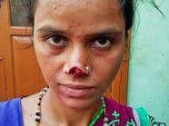 هندي يقطع أنف زوجته ويهرب به لسبب غريب!