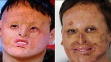 زراعة وجه لرجل.. من جلد معدته