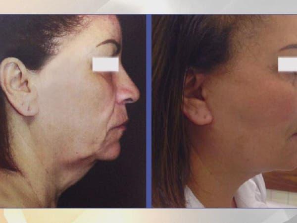 تقنية شد عضل الوجه تعود بشباب البشرة 10 سنوات على الأقل