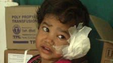 بھارت: چار سالہ بچی کے کان سے 80 کیڑے برآمد
