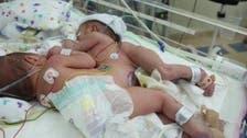 بالصور.. بدء عملية فصل التوأم السيامي السعودي