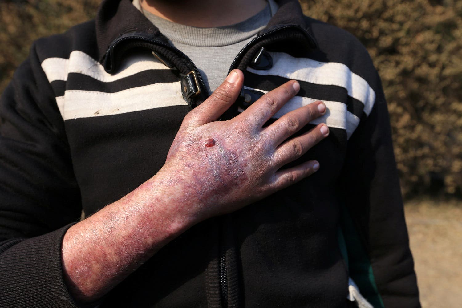Sirhan Awwad shows his injuries after he tried to help remove a rocket fired by ISIS that landed and exploded in Qayyara. (Reuters)