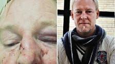 مسلمون انهالوا ضرباً على سويدي شهير لأنه يشبه ترمب