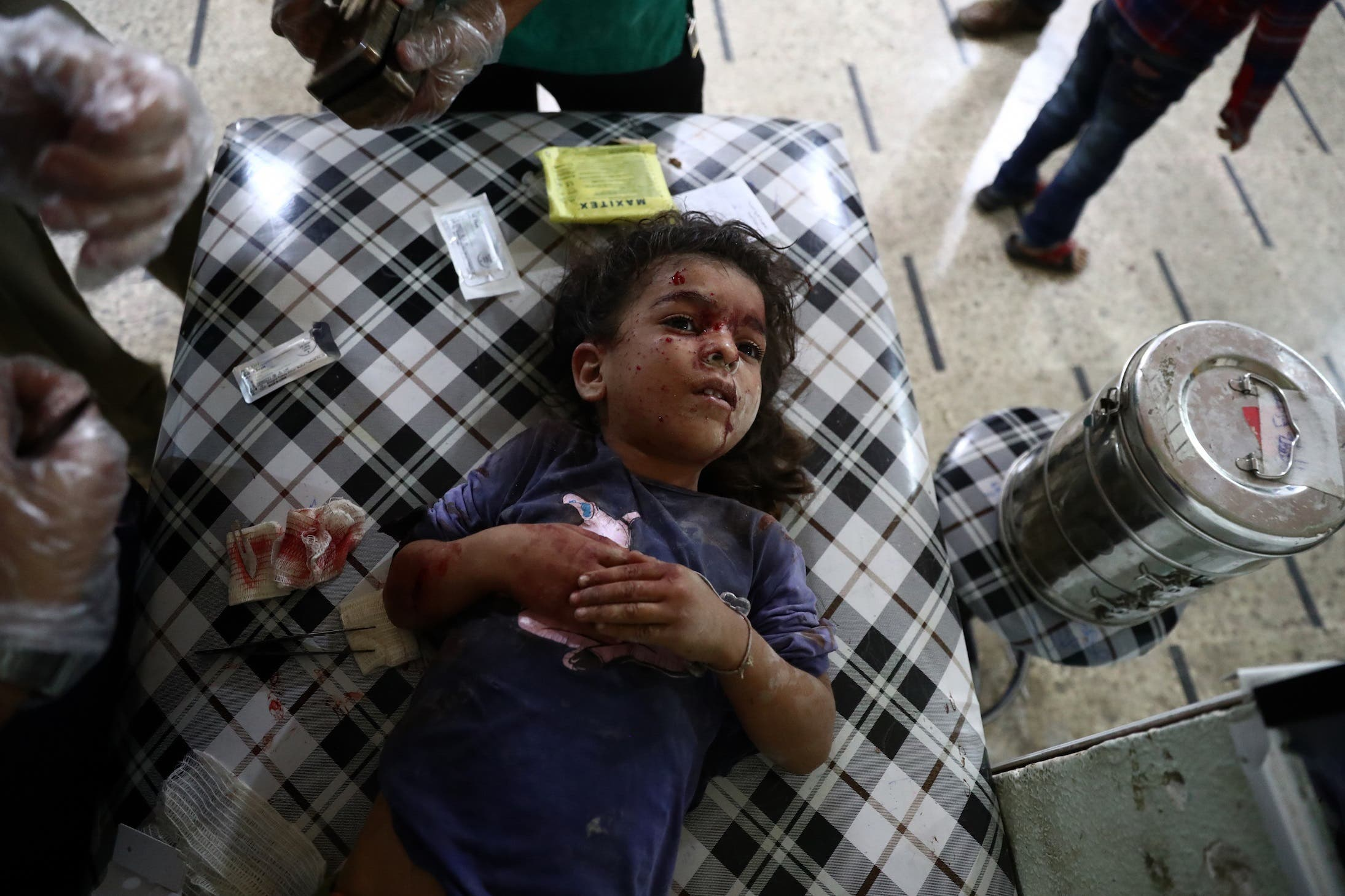 An injured Syrian child receives treatment at a makeshift hospital on October 3, 2016, following reported air strikes in the rebel-held town of Douma, on the eastern outskirts of the capital Damascus. (AFP)