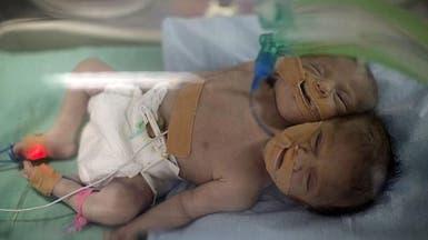 """ولادة توأم سيامي """"نادر"""" برأسين وجسد واحد في غزة"""