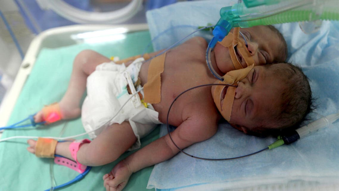 Palestinian conjoined twins lie in an incubator a day after they were born at Shifa hospital in Gaza City November 23, 2016. REUTERS