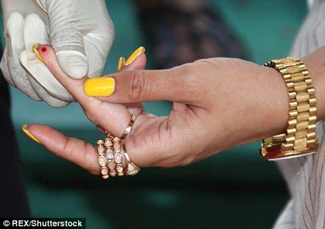 أظافر ريهانا تتألق باللون الأصفر خلال الفحص