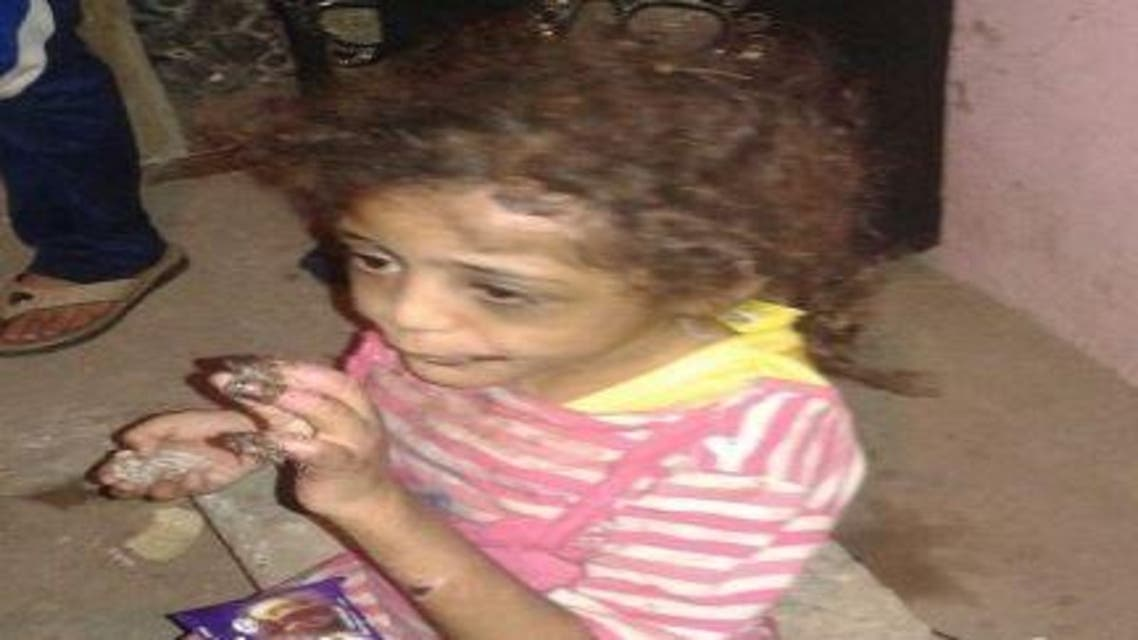 مصري يعذب طفلته حرقاً.. والسبب صادم