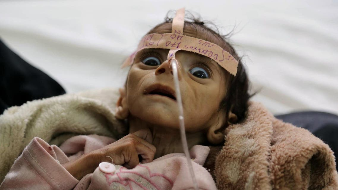 2016 AP YEAR END PHOTOS - Udai Faisal, an infant who is suffering from acute malnutrition, is hospitalized at Al-Sabeen Hospital in Sanaa, Yemen, on March 22, 2016. Udai died on March 24. Hunger has been the most horrific consequence of Yemen's conflict and has spiraled since Saudi Arabia and its allies, backed by the U.S., launched a campaign of airstrikes and a naval blockade a year ago. (AP Photo/Maad al-Zikry, File)
