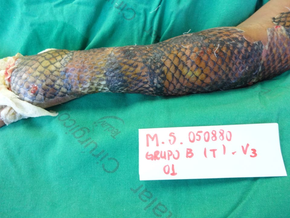 Burns victim Maria Ines Candido da Silva is one of the first patients to be treated using the skin on a Tilapia fish, after she suffered horrific burns in an explosion. Her arm is pictured after treatment once the fish skin was removed IJF Burns Unit - Caters News Agency