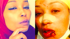 Watch: Muslim woman forgives woman who smashed beer mug in her face