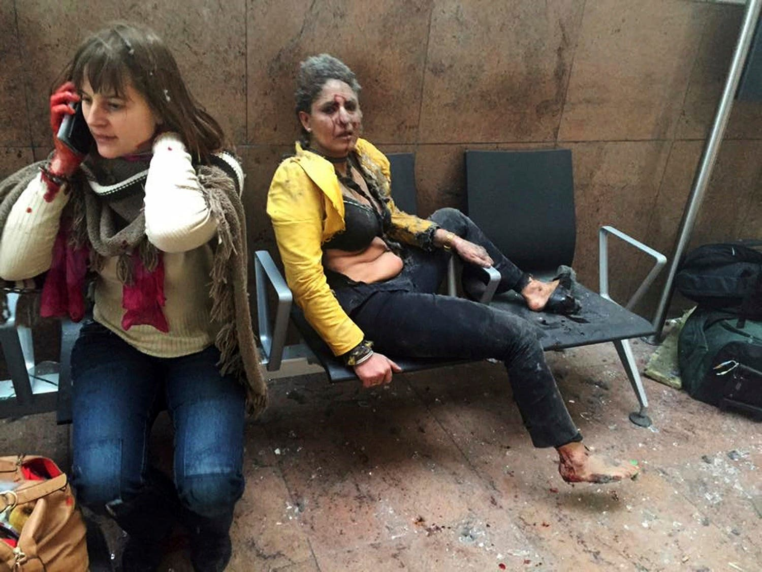 89: A 40-year-old Jet Airways flight attendant from Mumbai, right, and another unidentified woman are shown after being wounded in Brussels Airport in Brussels, Belgium, after explosions rocked the airport on March 22, 2016. (AP)