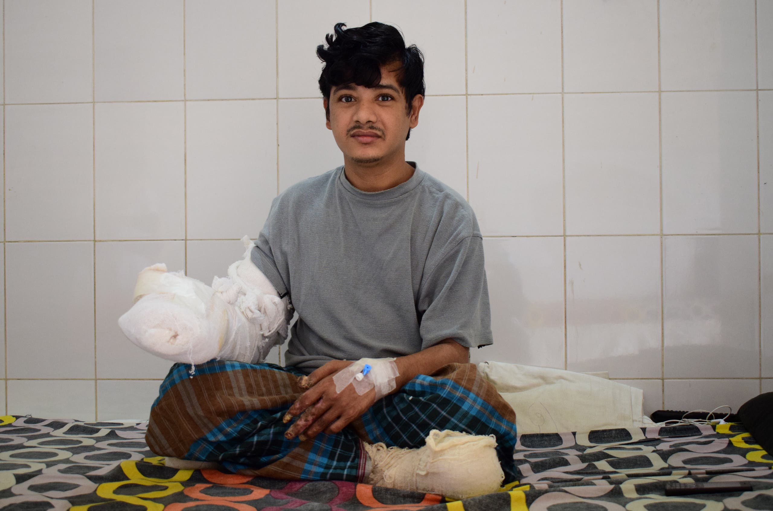 Bangladeshi man Abdul Bajander rests a day after a surgery at Dhaka Medical College Hospital in Dhaka on February 21, 2016. A Bangladeshi man dubbed 'tree man' due to large bark-like warts growing on his hands and feet underwent successful surgery on February 20 to remove some of the growths. AFP PHOTO/ Munir uz ZAMAN MUNIR UZ ZAMAN / AFP