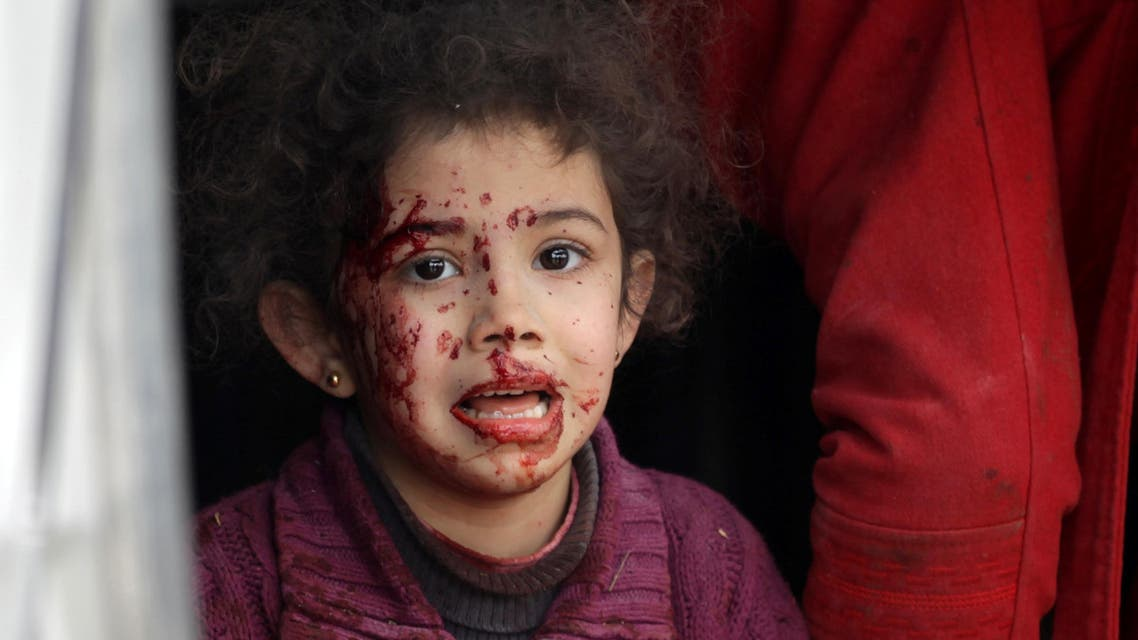 ATTENTION EDITORS - VISUAL COVERAGE OF SCENES OF INJURY OR DEATHAn injured girl reacts after a car bomb explosion in Jub al Barazi east of the northern Syrian town of al-Bab, Syria January 15, 2017. REUTERS/Khalil Ashawi