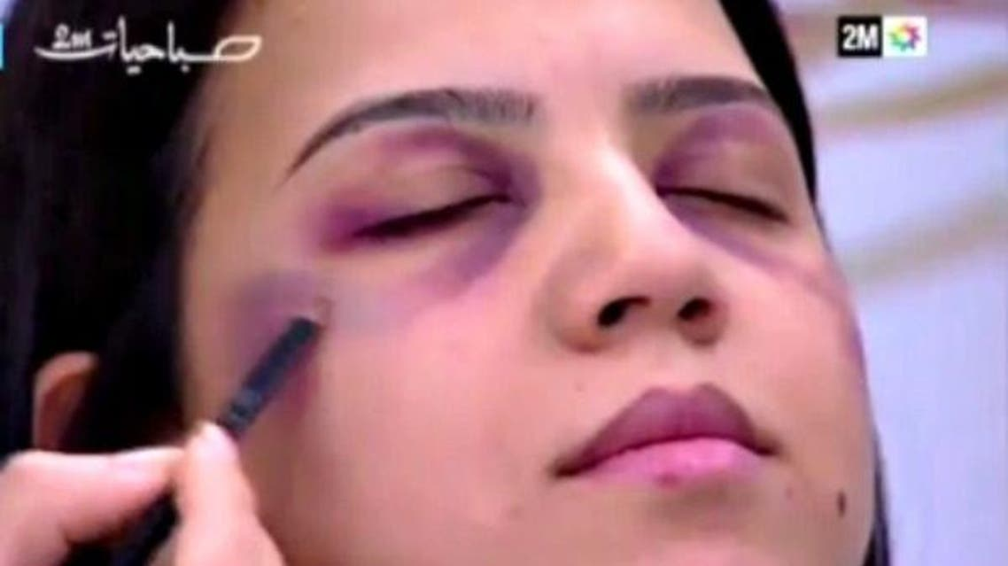 The sequence depicted a woman with a swollen face, with the presenter telling viewers that she was not really injured. (Screengrab)