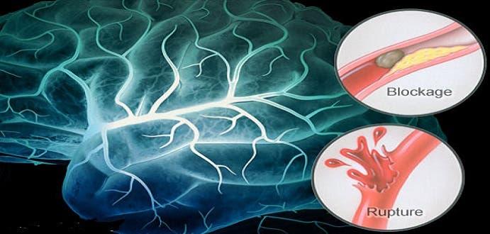 الجلطة الدماغية تشل من تنال منه كليا أو جزئيا، وأحيانا تقتله