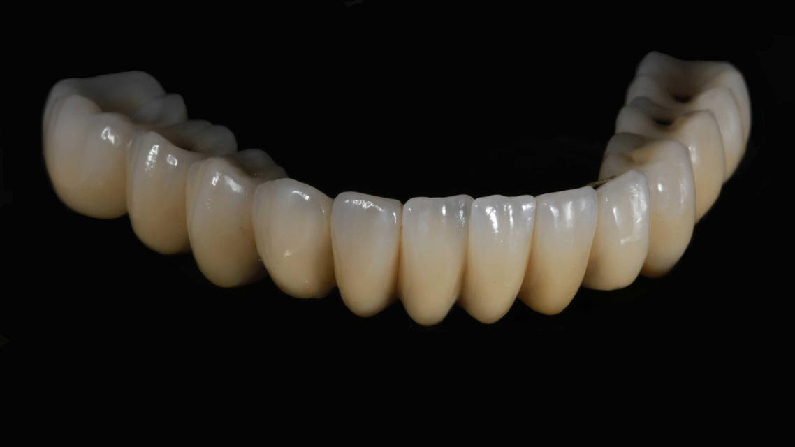 The finished product after Middle East Dental Lab applied ceramic