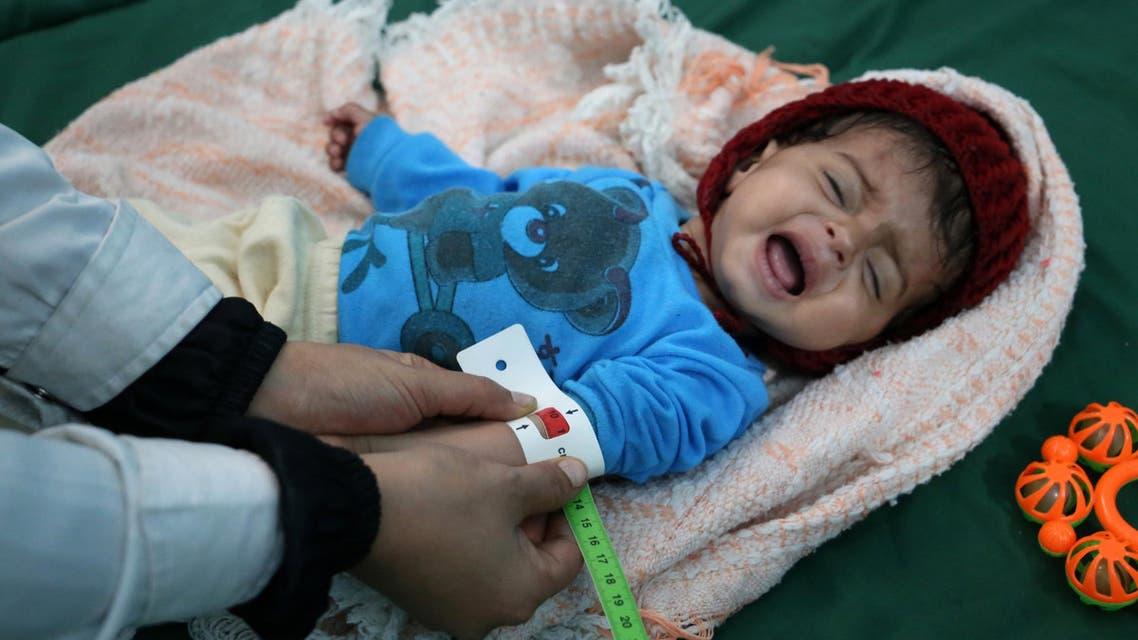 طفل يمني يخضع للعلاج بعد المعارك في تعز - فرانس برس